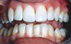 After | Vidalia Dentist