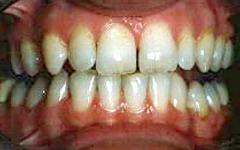 Before | Vidalia Dentist